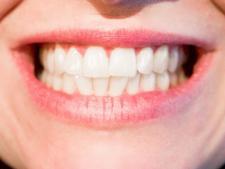 Nić dentystyczna – najważniejsze informacje
